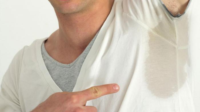 Гипергидроз: причины и лечение
