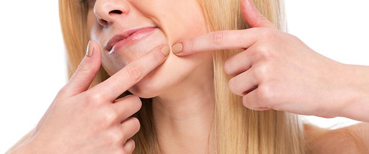 Акне вульгарное. Лечение в ИнтеграМедбьюти