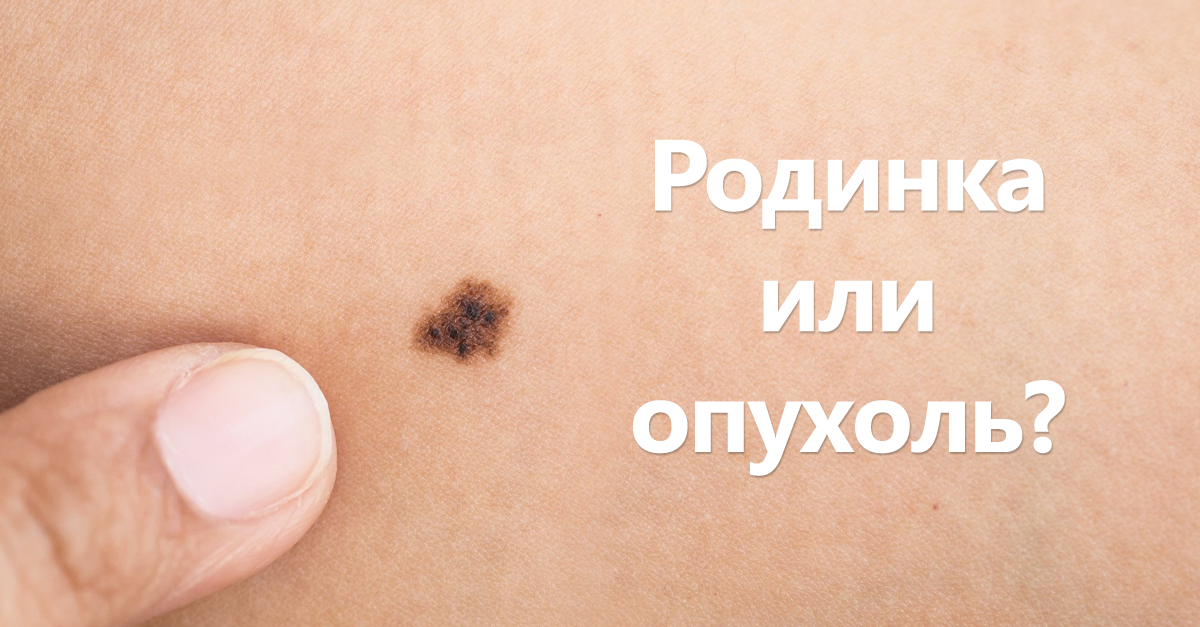 Что такое меланома?