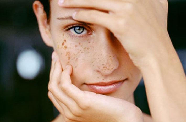 Красивая кожа без пигментных пятен