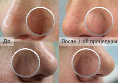 Косметический варикоз лечение