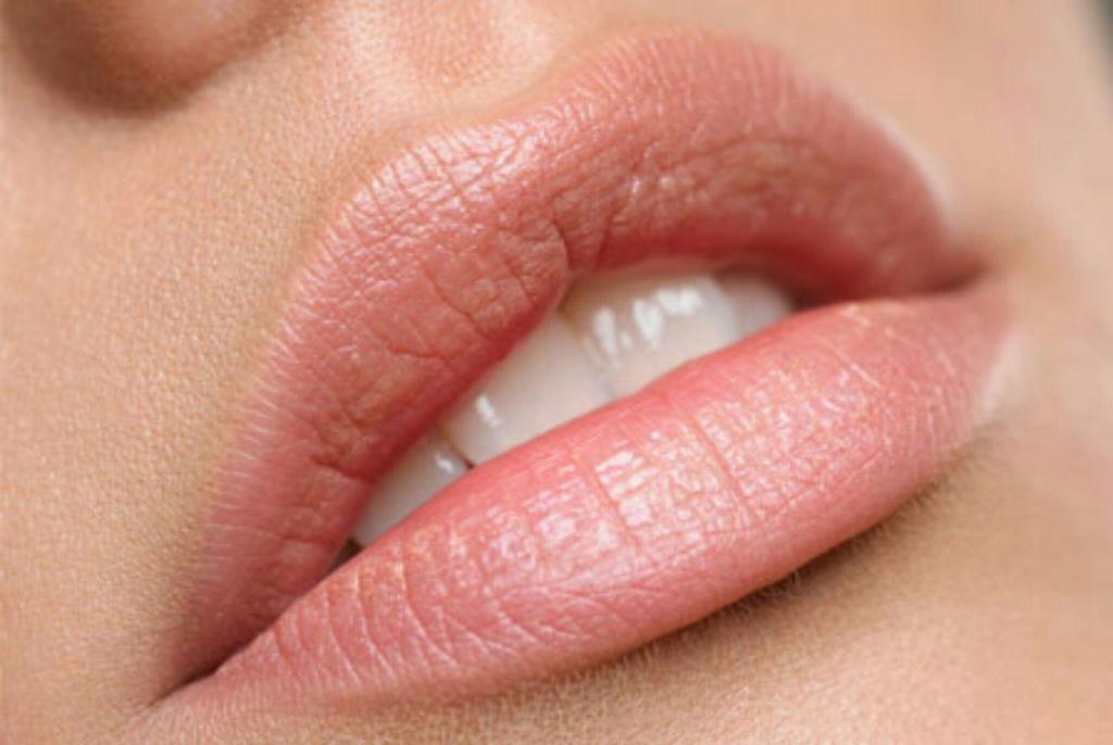 Что нужно знать об увеличении губ