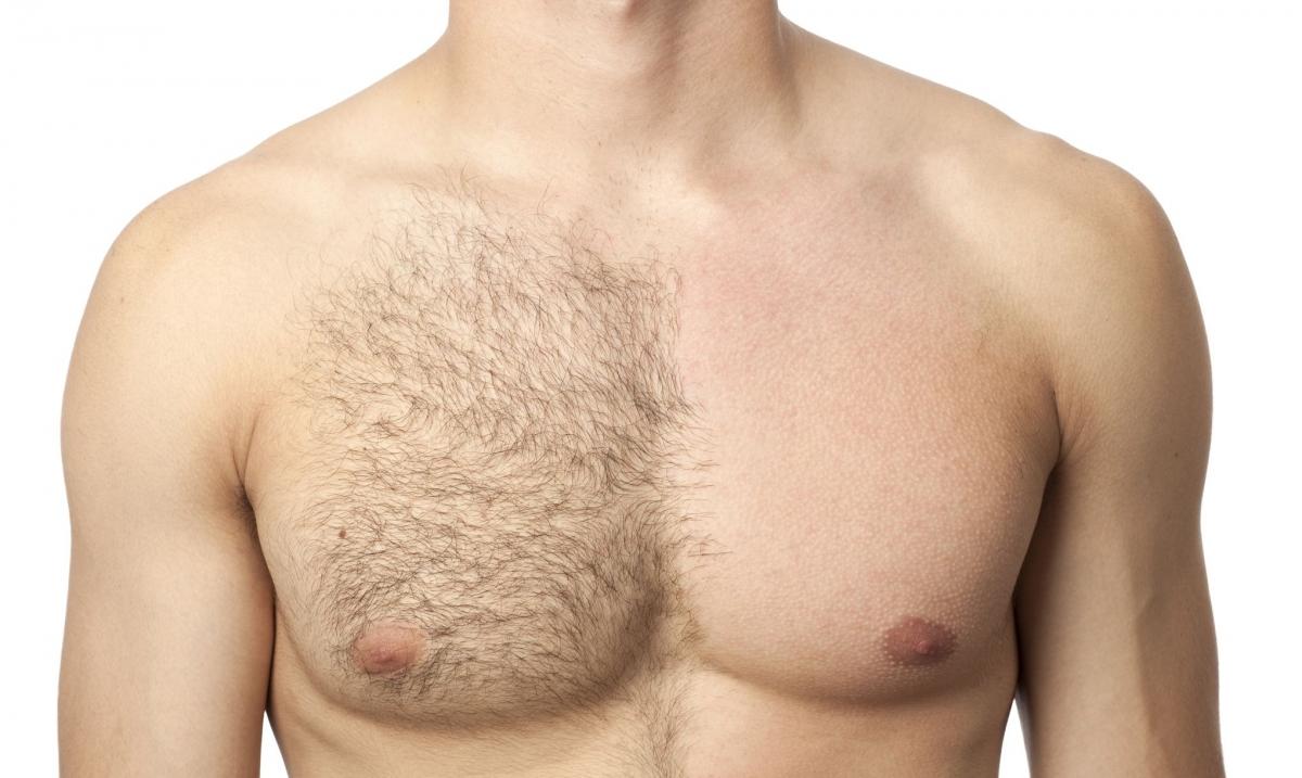 Лазерная эпиляция груди у мужчин