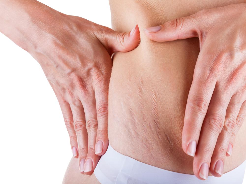 Как стать обладательницей красивого тела без растяжек, рубцов и шрамов?