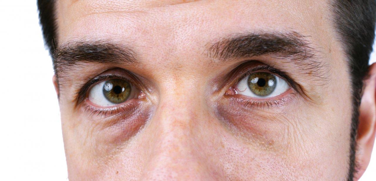 Какими процедурами убрать темные круги под глазами?